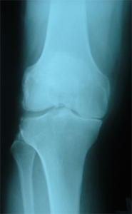 total-knee-partroplasty-pre